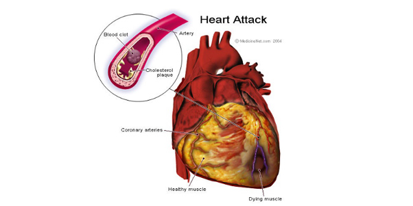 Spotting The Signs Of Having A Heart Attack.